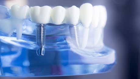 Implantologie Soltau